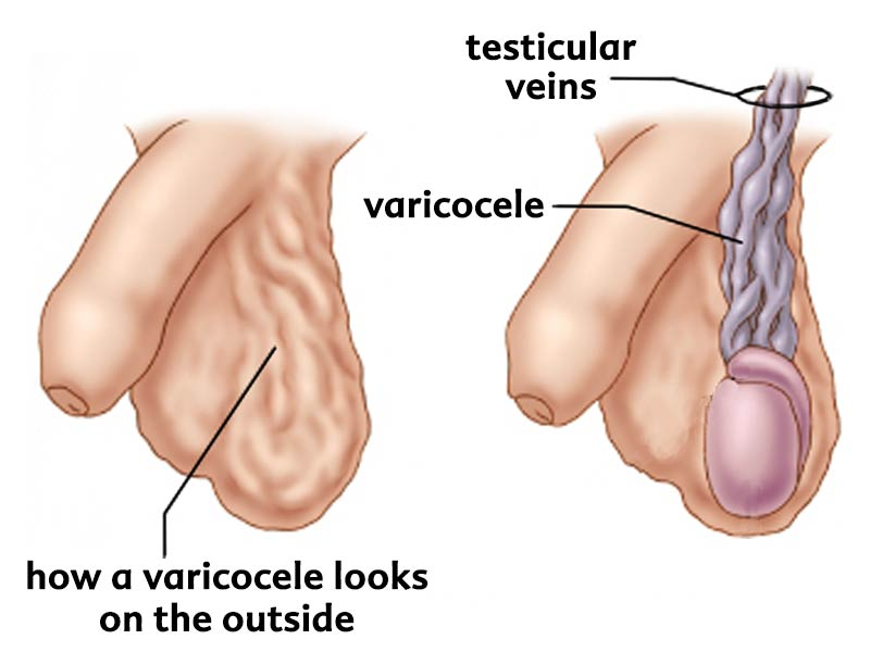 Drawing of how a scrotum with a varicocele looks.