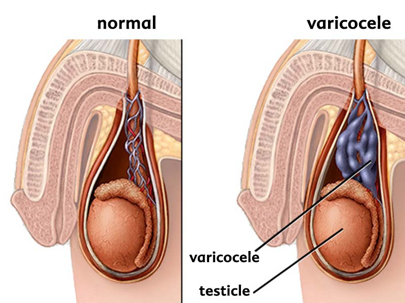 Drawing of a cross section of a scrotum showing a varicocele.