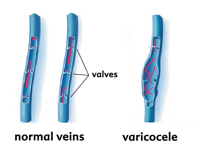 Drawing showing normal veins and veins where the valves aren't working as a result of a varicocele.