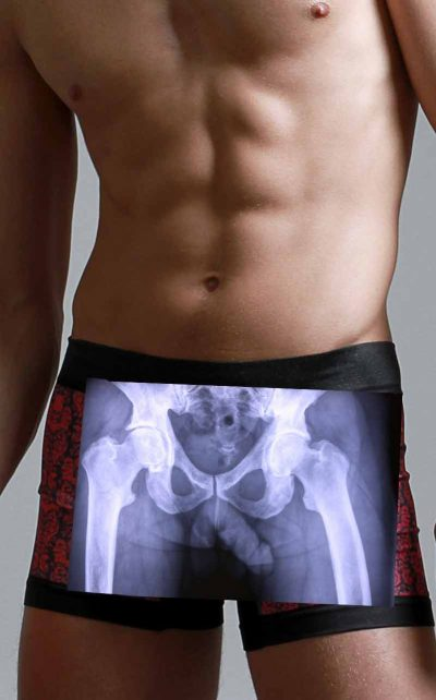 A male from his knees to his shoulders with an xray of his penis and pelvis showing through his boxer briefs.