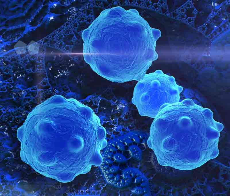 Electron microscope view of cancer cells with a blue dye.