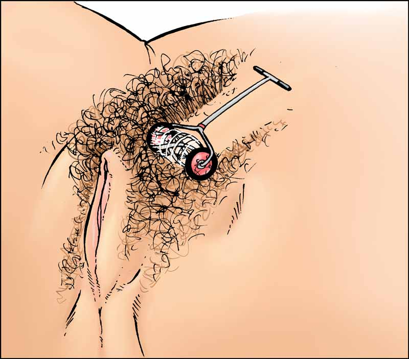 Illustration of a hand pushed lawnmower cutting a path through the pubic hair on a woman's genitals.